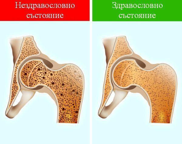 Подобряване на здравето на костите