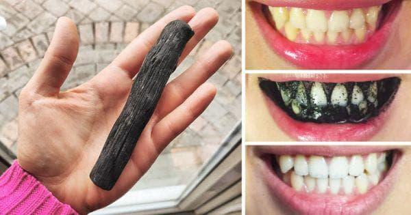 Избелване на зъби с активен въглен