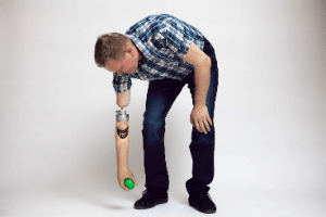 протеза за ръка