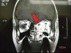 други тумори на средното ухо