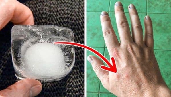 Поставяне на кубче лед между палеца и показалеца