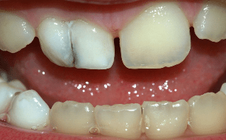 Близначни зъби