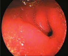 неврогенен тумор