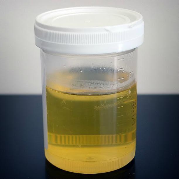 тест за бременност с урина