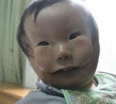 масковидно лице