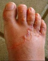 Анкилостомидоза - кожни промени