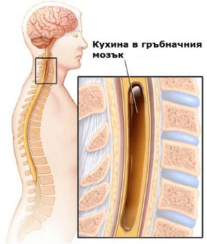 сирингомиелия (syringomyelia)