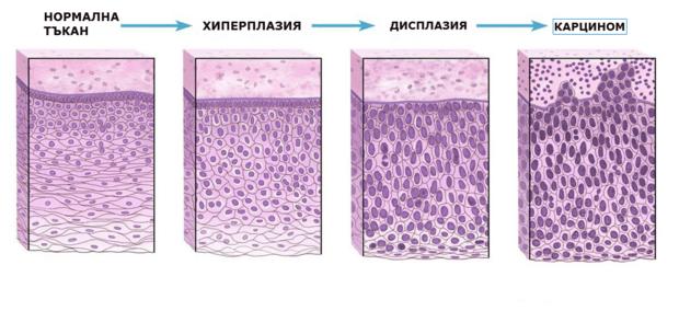 Резултати от биоспия