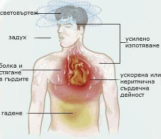 Симптоми на сърдечна атака
