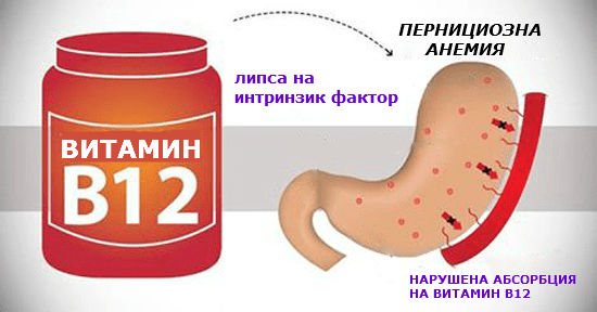 Пернициозна анемия
