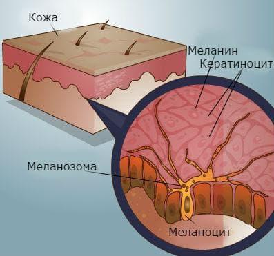 себорейна кератоза