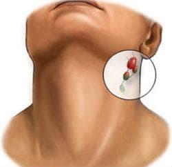 Уголемени шийни лимфни възли