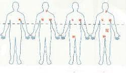 Малигнен лимфом - стадиране