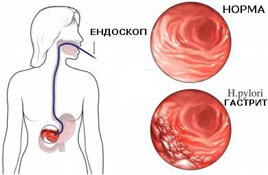 Ендоскопия и биопсия на стомашна лигавица: