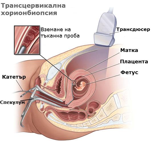 Трансцервикална хорионбиопсия