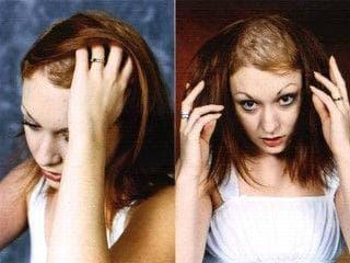 опадане на косата при трихотиломания