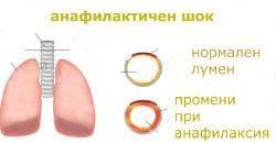 респиораторни промени при анафилаксия