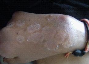 Папулосквамозни увреждания