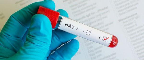 Диагностициране на хепатит А