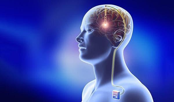 дълбока мозъчна стимулация