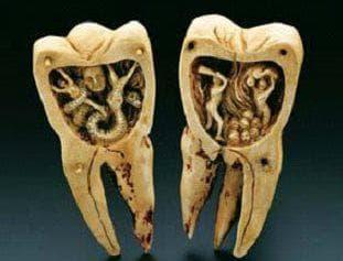 Модели на зъби от слонова кост