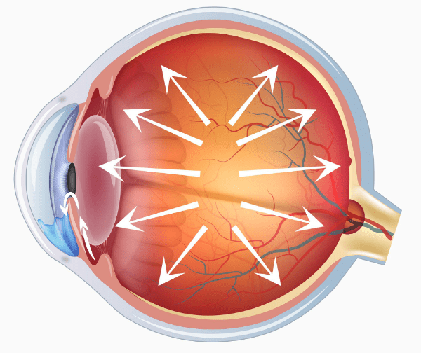 Рискови фактори при глаукома