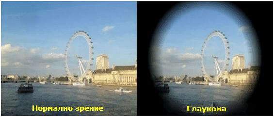 Симптоми при глаукома