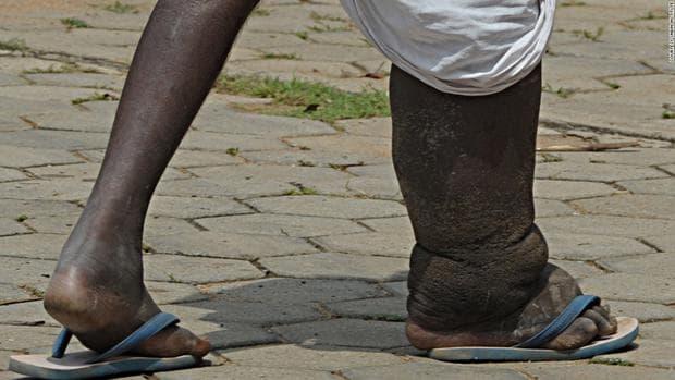 Слонска болест