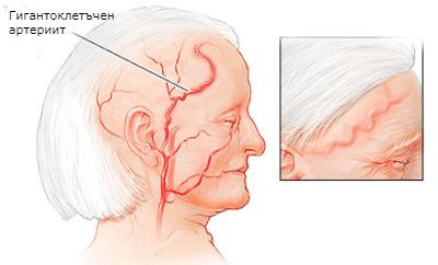ревматична полимиалгия