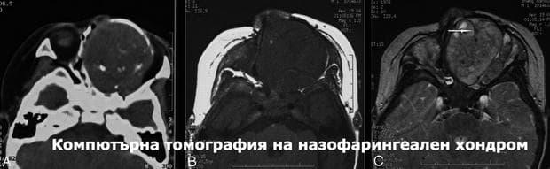 Назофарингеален хондром