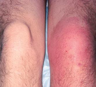 пневмококов артрит и полиартрит