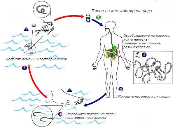 артрит при други инфекциозни и паразитни болести,   класифицирани другаде