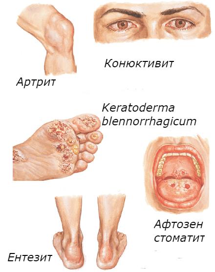 Реактивный артрит простатит простатит лечение асд фракция 2