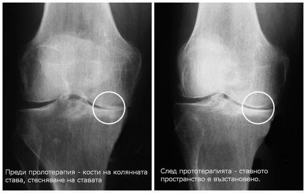 Рентгенографии на коленни стави преди и след пролотерапия