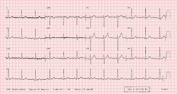 нормална електрокардиограма