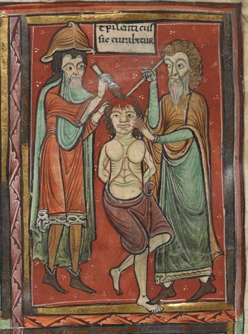 Средновековна мозъчна операция