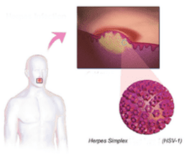 herpes_infection