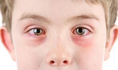 Алергичен конюнктивит