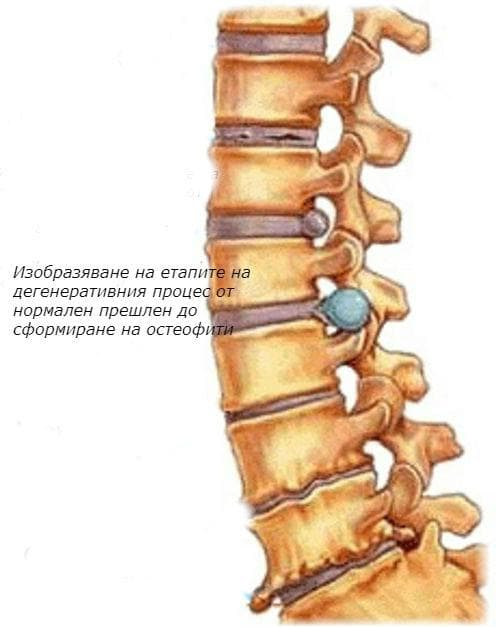 остеохондрит на гръбначния стълб, неуточнен