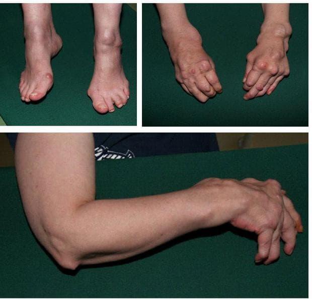 други серопозитивни ревматоидни артрити