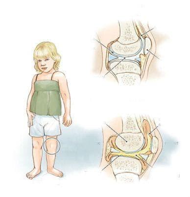 Юношески полиартрит (серонегативен)