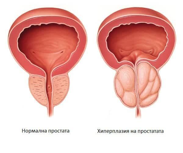 a prosztatitisből süllyedhet Teák a prosztatitis
