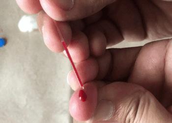 Вземане на кръв