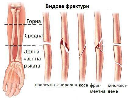 Фрактура на ръката