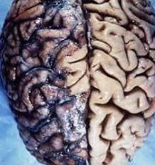 Мозък, засегнат от сифилис