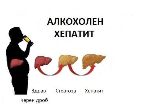 Алкохолен хепатит