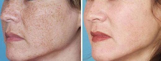 Лицена жена преди и след терапия