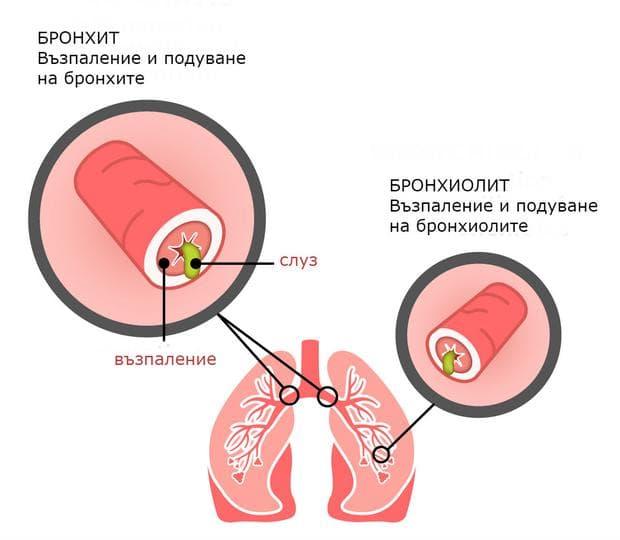 Промени в дихателните пътища при бронхит и бронхиолит