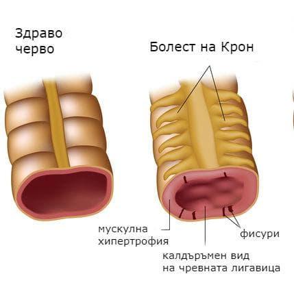 Здраво черво и промени в червата при болест на Крон