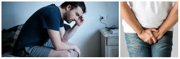 Какво представлява варикоцеле: симптоми, рискове